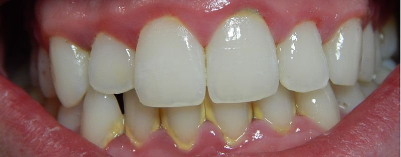gingivitis gum disease