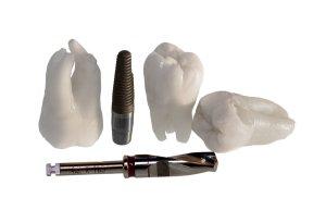 bloomingdale cosmetic dentist