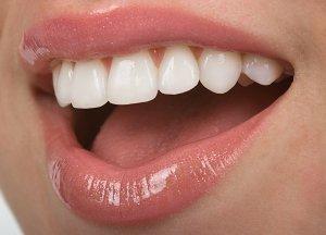 dental veneers Bloomingdales