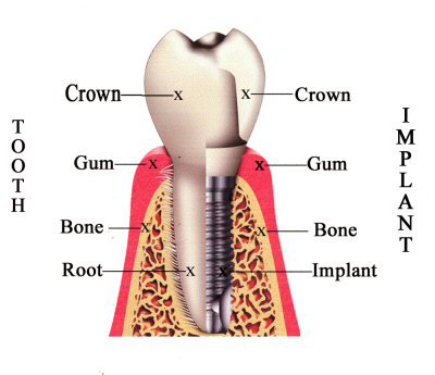 Dental Implants in Bloomingdale