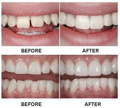 Cosmetic Dentistry in Glendale Heights